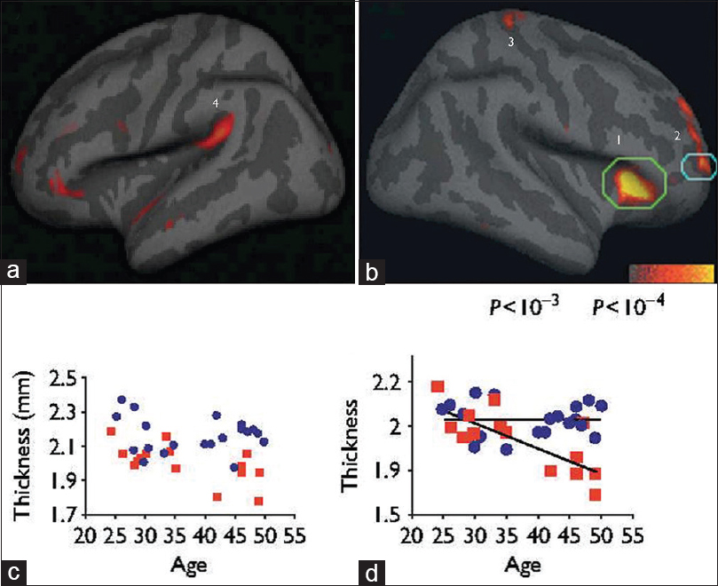 Figure 3: Cortical regions thicker in meditators than in controls. (a and b) Statistical map depicting between-group differences in thickness at each point on the cortical surface overlaid on the inflated average brain. Numbered regions: (1) Insula, (2) Brodmann area (BA) 9/10, (3) somatosensory cortex, (4) auditory cortex. (c and d) Scatter plot of mean cortical thickness of each participant in the subregion above threshold within each circled region of (c) insula and (d) BA 9/10, plotted versus age. Meditation participants: Blue circles; control participants: Red squares<sup>[14]</sup>