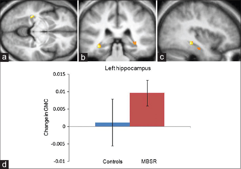 Figure 4: Region of interest analysis identifies gray matter concentration increases in the left hippocampus MNI coordinates x = −36 (a), y = −34 (b), z = −8 (c) in the mindfulness-based stress reduction group. Voxels (thresholded at <i>P</i> = 0.01 and masked for the regions of interest) are overlaid over the group-averaged brain. (d) Change in gray matter concentration within the cluster in the left hippocampus from the pre- to the post-time-point in the mindfulness-based stress reduction and the control group; error bars show 95% confidence interval<sup>[16]</sup>