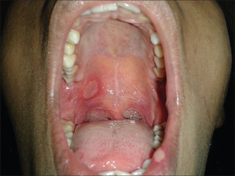 Figure 3: Major aphthous ulcer in the palate and lips