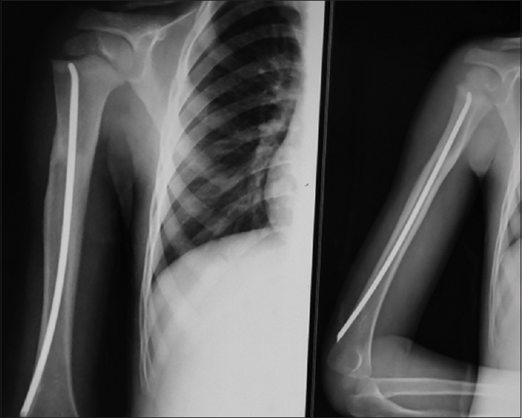 Figure 5: United humerus fracture of same patient 3 months after surgery