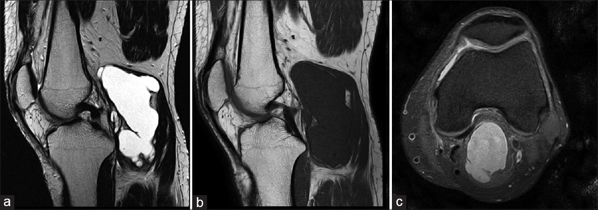 An Uncommon Knee Pain Ganglion Cyst In The Gastrocnemius Medialis